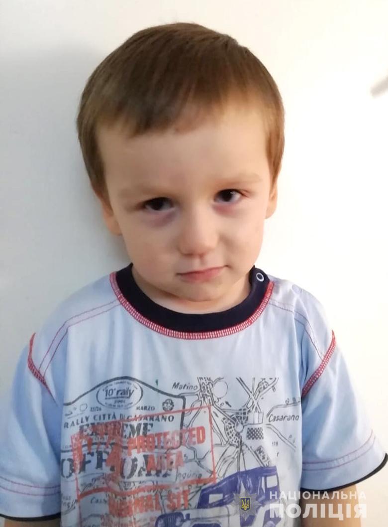 В Киеве нашли ребенка с ссадинами на теле