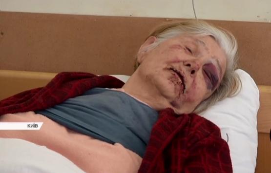 Злые пытки женщины встолице поставили «науши» киевлян