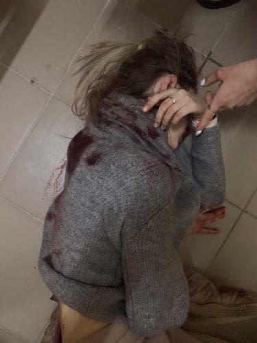 В Киеве девушку 17 раз ударили ножом после попытки изнасиловать